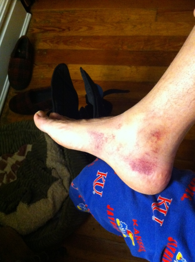 My bruised ankle three days after the event.  The other side is much worse, but I can't bend things enough to take a pic.