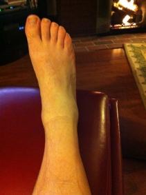 Sunday night, amidst swelling.