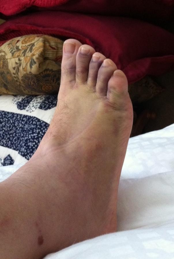 ankle-swollen